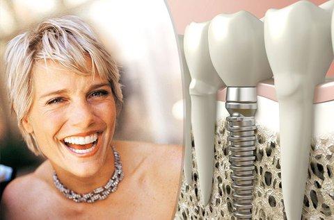 Egyrészes komplett fogimplantátum beültetése
