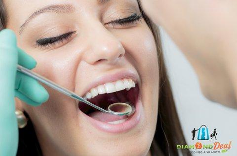 Egészséges fogak és vakító mosoly Airflow kezeléssel