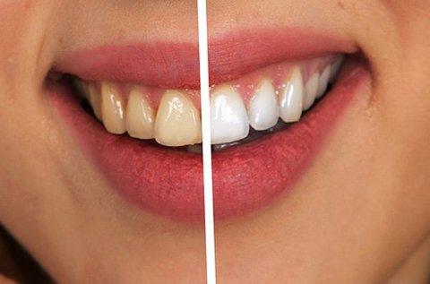 Vakítóan fehér fogsor LED lámpás fogfehérítéssel
