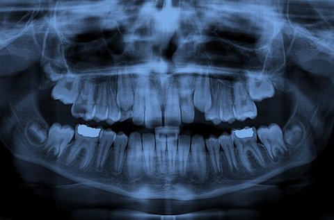 Teljes digitális panorámaröntgen