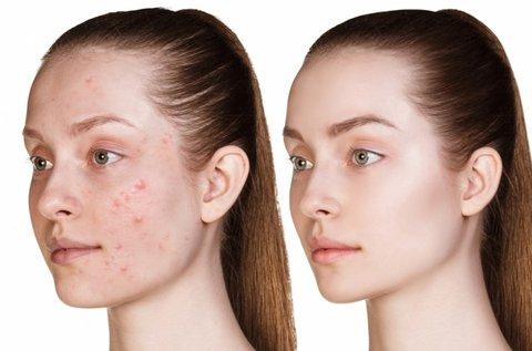 Dermarolleres akne és problémás bőr kezelés