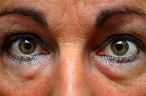 Karikás szemek kezelése rádiófrekvenciával