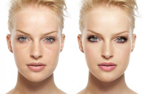 HIFU kezelés arc, nyak, toka és dekoltázs területen