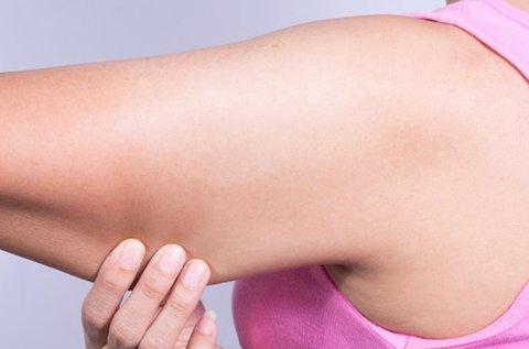 Multishape vákuumos felkar feszesítő kezelés