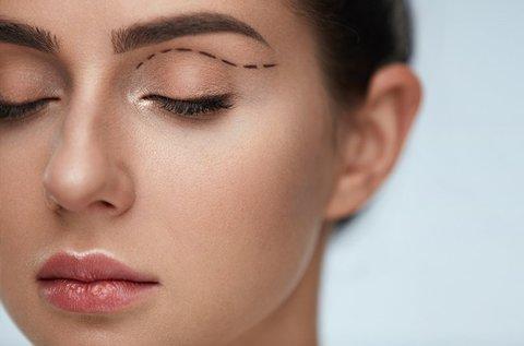 Plazma Pen-es felső szemhéjplasztika