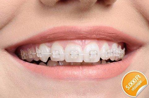 Esztétikus fogszabályzó 1 fogívre