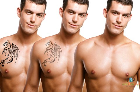 Hegmentes lézeres tetoválás eltávolítás
