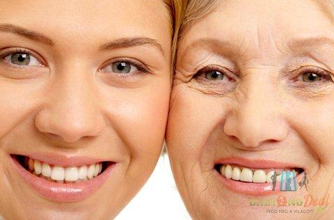 HIFU Ultra Therapy homlok vagy toka ránctalanítás