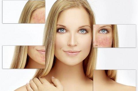 Perfect Skin Mineral bőrnyugtató arckezelés