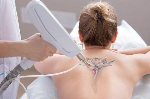 YAG lézeres tetoválás eltávolítás