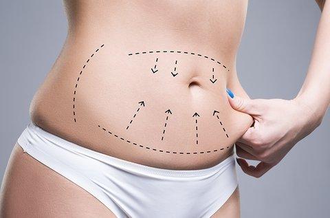 6 kezelésből álló, hasi zsír plasztikai szintű kezelése