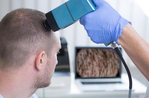 Hajhagyma vizsgálat bioptron lámpás kezeléssel