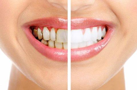 Fogkő-eltávolítás és orál kamerás fogászati vizsgálat