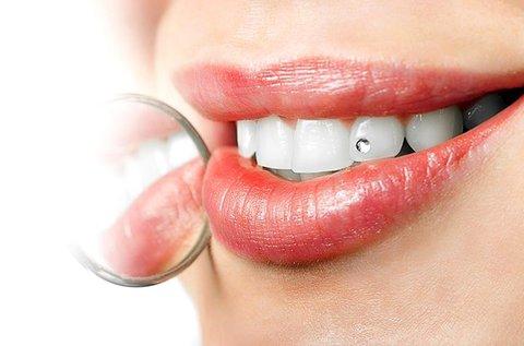 Swarovski fogékszer és felhelyezése