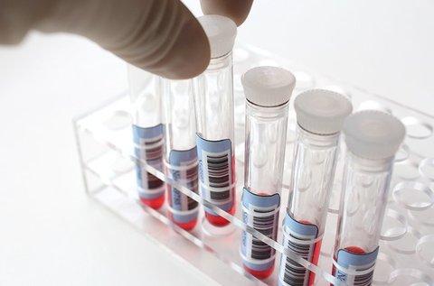 Vércseppanalízis kiértékeléssel