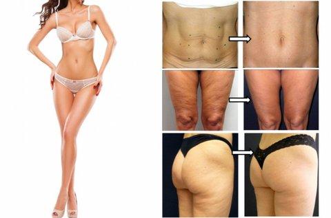 Body Thermage II. bőrfeszesítés