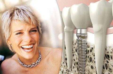 Egyrészes, minőségi komplett fogimplantátum