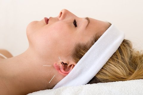 1 alkalmas fülakupunktúrás kezelés