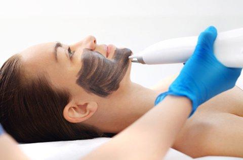 Lézeres Karbon Peeling bőrfiatalító arckezelés