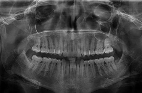 Digitális fogászati panorámaröntgen