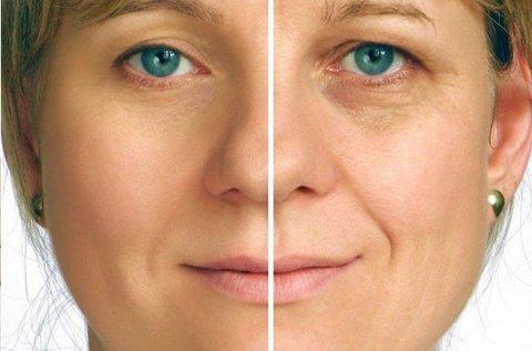 Beauty Spa fiatalító arckezelés mezoterápiával