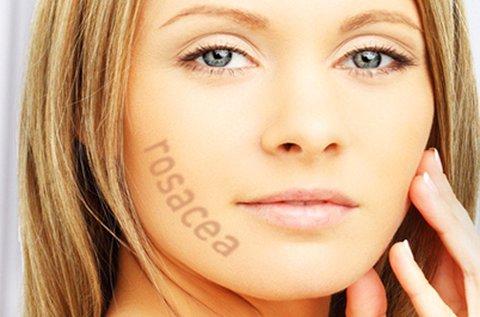 Rosacea vagy hajszálér eltüntetés teljes arcon