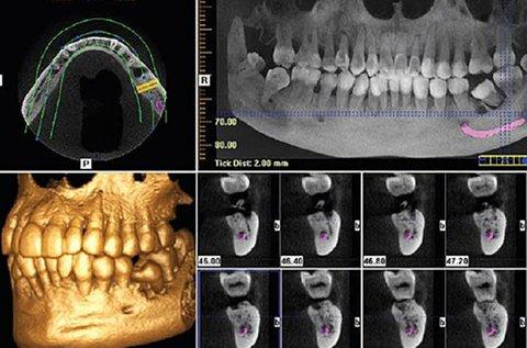 3D Cone Beam CTfelvétel készítés