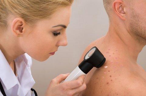 Komplett melanoma szűrés