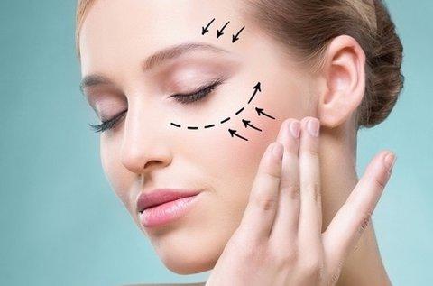 HIFU szemhéjemelés és szarkaláb feltöltés