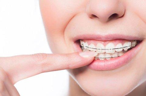 Fém fogszabályozó készítés konzultációval