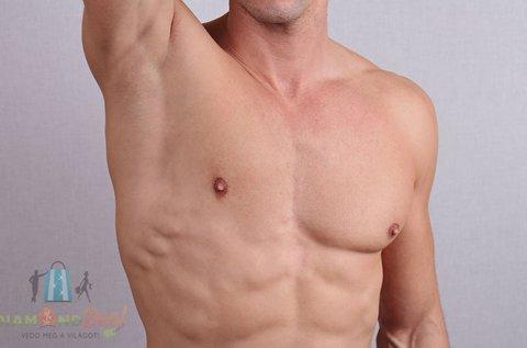 5 alkalmas SHR szőrtelenítés férfiaknak