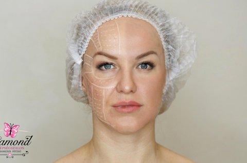 UltraLift HIFU homlok vagy szemkörnyék kezelés