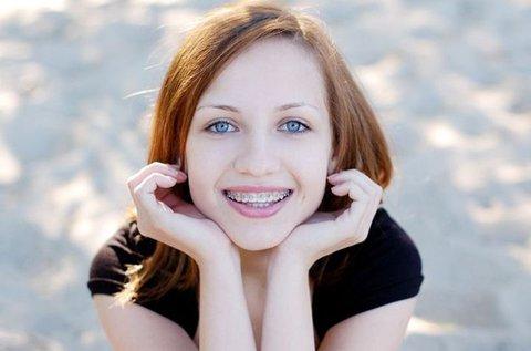 Fém fogszabályozó fogkő-eltávolítással