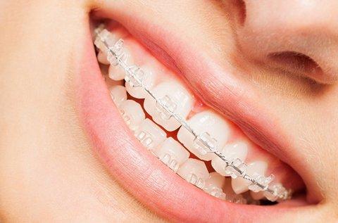 Porcelán rögzített fogszabályozó