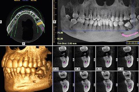 3D Cone Beam fogászati CTkészítése