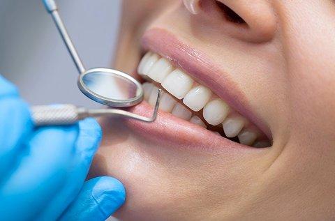 Fogászati szépségcsomag a tökéletes fogakért