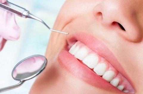 Egészséges fogak fogkő-eltávolítással