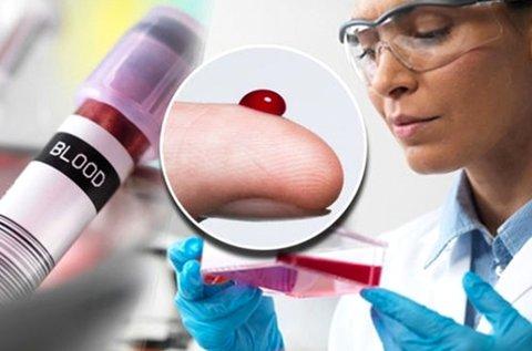Vércseppanalízis Candida- és ételintolerancia teszttel