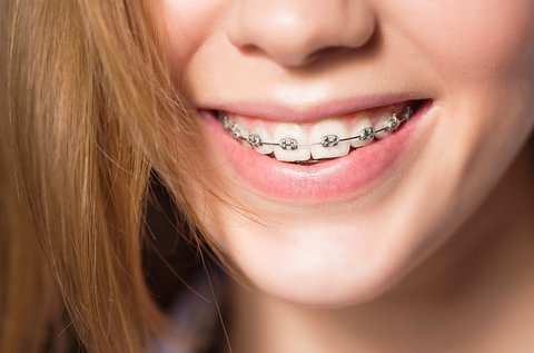 Fém fogszabályozás 1 fogívre