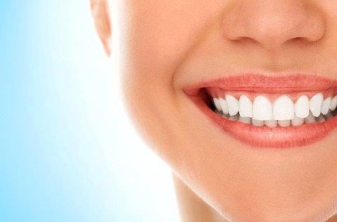 Professzionális rendelői fogfehérítés 2 fogívre