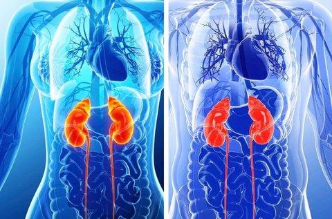 Ultrahangos urológiai kivizsgálás