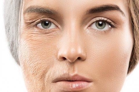 3 alkalmas ránctalanítás arcon 3 féle eljárással