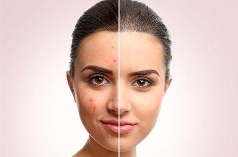 E-light fotorejuvenációs akne kezelés teljes arcon