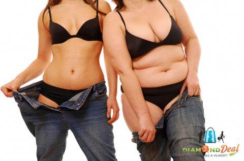 5 alkalmas testsúly és méretcsökkentő kezelés