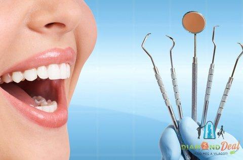 Ragyogó fogak ultrahangos fogkő-eltávolítással