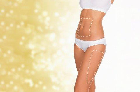 HIFU zsírbontó testkezelés választható területen