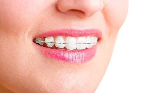 Rögzített fogszabályozó készülék 1 fogívre