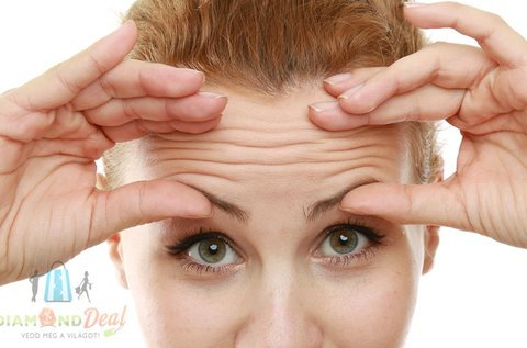 3 alkalmas hyaluronsavas kollagénindukciós terápia