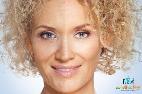 Mezoterápiás arcfiatalítás 40 feletti hölgyeknek