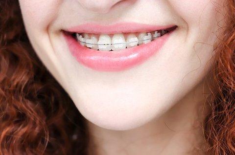 Fém vagy porcelán fogszabályzás 1 fogívre